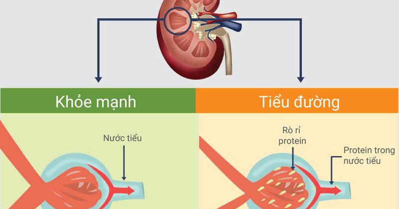 Ảnh hưởng của tiểu đường đến chức năng thận